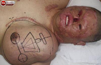 ترمیم صورت سوخته این مرد با رشد صورت جدید بر روی سینه اش