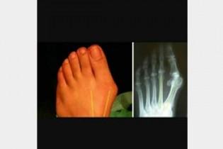آنچه باید در درمان انگشت شست پای منحرف بدانید